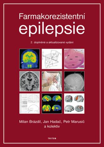 Farmakorezistentní epilepsie