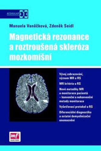 Magnetická rezonance a roztroušená skleróza mozkomíšní