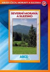 Severní Morava a Slezsko - Krásy Č,M,S - DVD