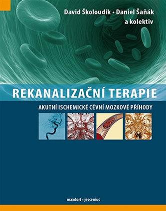 Rekanalizační terapie - Akutní ischemické cévní mozkové příhody