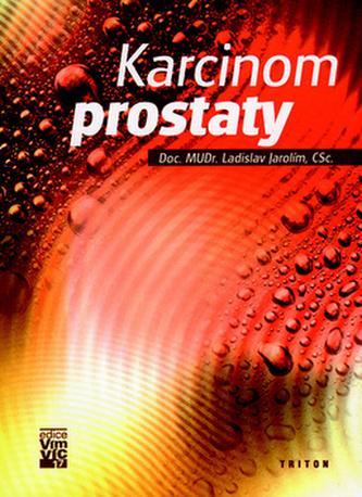 Karcinom prostaty