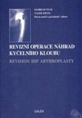 Revizní operace náhrad kyčelního kloubu