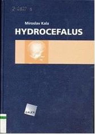 Hydrocefalus