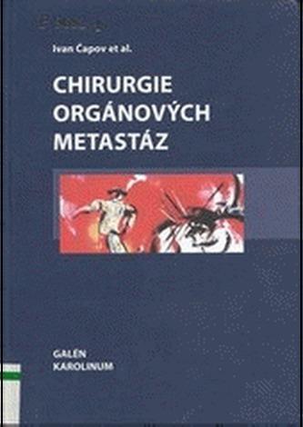 Chirurgie orgánových metastáz