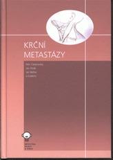 Krční metastázy