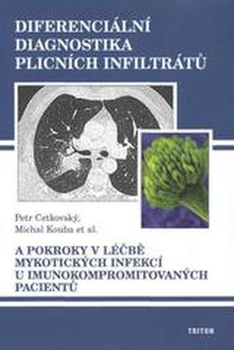 Diferenciální diagnostika plicních infiltrátů