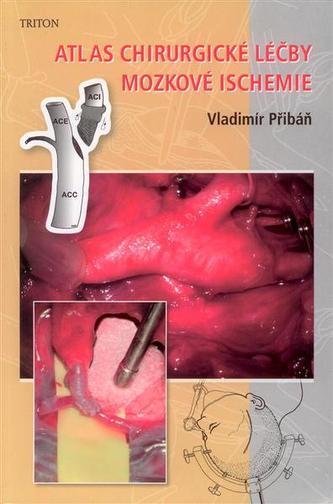 Atlas chirurgické léčby mozkové ischemie