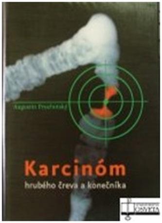 Karcinóm hrubého čreva a konečníka + CD-ROM