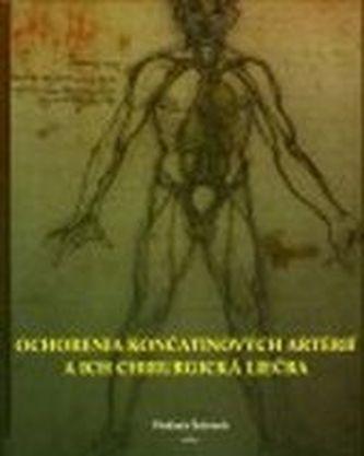 Ochorenia končatinových artérií aich chirurgická liečba.