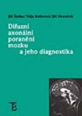 Difuzní axonální poranění mozku a jeho diagnostika