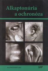 Alkaptonúria a ochronóza