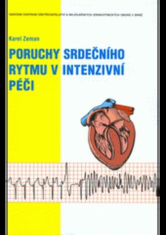 Poruchy srdečního rytmu v intenzivní péči