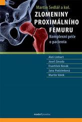 Zlomeniny proximálního femuru - Komplexní péče o pacienta