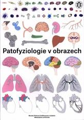 Patofyziologie v obrazech