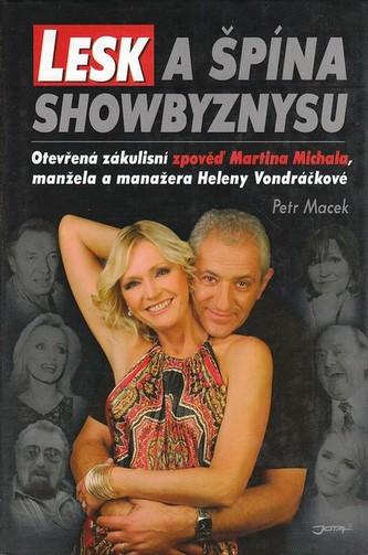Lesk a špína showbyznysu