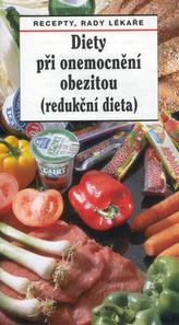Diety při onemocnění obezitou (redukční dieta)