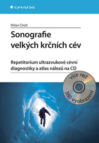 Sonografie velkých krčních cév